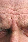 Stirnfalten-Hautarzt-Herford