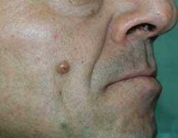 Nävuszellnävus vor CO2-Lasertherapie